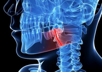 TMJ / Neuromuscular Dentistry