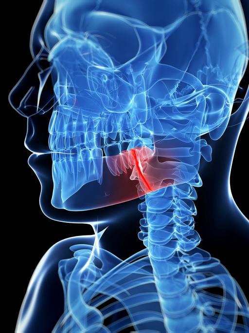 jaw - xray tmj neuromuscluar dentistry